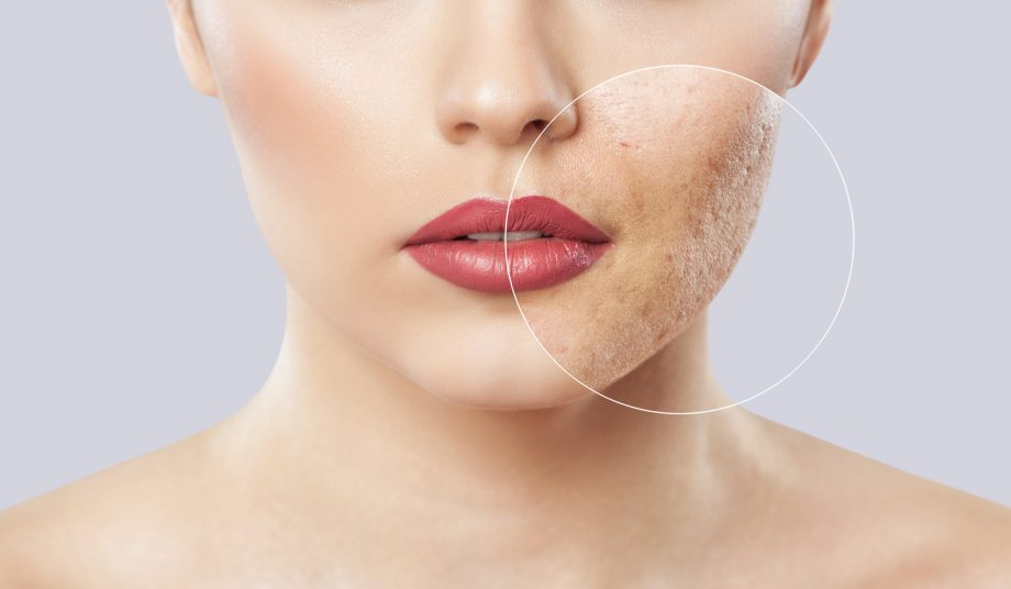 What Natural Things Can Help With Acne And Acne Scarring